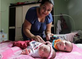 USP estuda possibilidade de alguns bebês terem gene protetor contra microcefalia