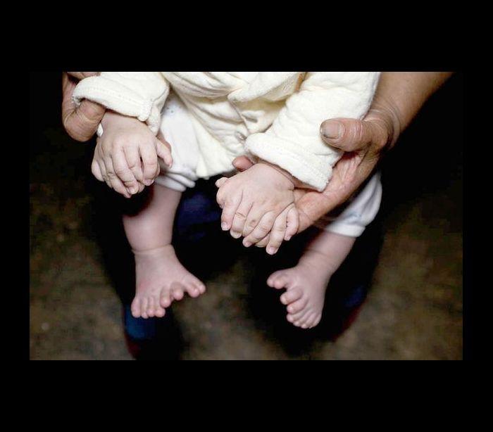 BEBÊ NASCE COM 32 DEDOS: Sendo 15 dedos nas mãos e outros 16 nos pés