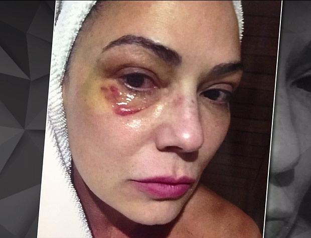 Justiça retoma hoje julgamento contra ex-marido de Luiza Brunet