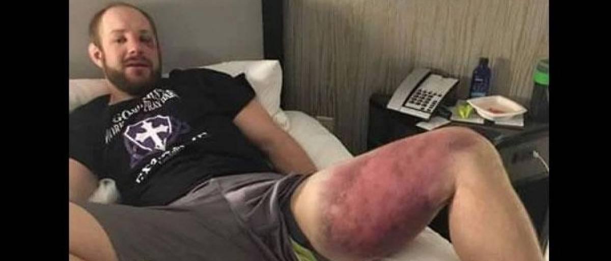 Lutador de MMA mostra estrago feito por brasileiro após chutes na coxa