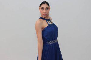 Desacreditada por médico, garota com microcefalia vira modelo