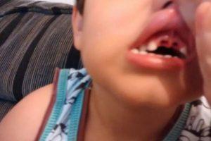 Menino perde dentes após queda em parquinho de escola, confirma a polícia