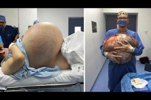 VEJA VÍDEO – Médicos retiram cisto ovariano de 32 quilos de paciente no México