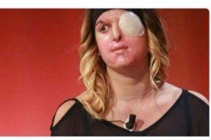 Modelo italiana atacada com ácido por ex-namorado exibe rosto pela primeira vez