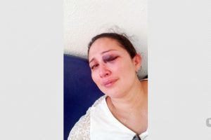 Mulher na PB denuncia agressão de ex-companheiro e delegado pergunta se 'não foi o guarda-roupa'