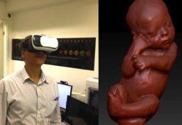 Ultrassom: nova técnica promete fazer pais se sentirem dentro do útero -VEJA VÍDEO