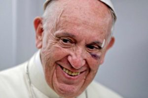 papa 1 300x200 - Papa Francisco se machuca no papamóvel