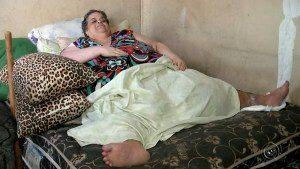 bariatrica323 300x169 - Falece em São Paulo dona de casa que pesava 300 kg