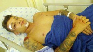 Capturar 22 300x168 - VEJA VÍDEO: MC Gui sofre acidente de moto no litoral de São Paulo