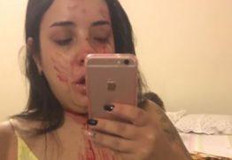Mulher agredida por ex posta foto ensanguentada, mas vira alvo de críticas