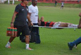 Danilo Bala fratura clavícula e deve desfalcar Campinense por até 60 dias