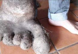 Família encontra batata de 8 kg em formato de pé no quintal de casa