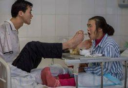 Chinês sem braços cuida da mãe em hospital