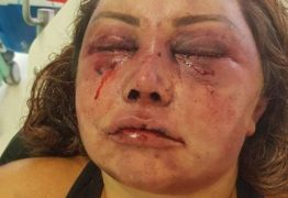 Reconstrução de rosto de mulher espancada vai durar seis meses, diz médico