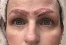 Mulher fica com quatro sobrancelhas após procedimento estético desastroso
