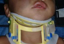 Mãe e padrasto são suspeitos de agredir criança de 2 anos
