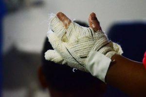 queimadura no sao joao divulgacao 300x200 - Mulher tem 70% do corpo queimado após jogar álcool em fogão em João Pessoa