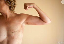 OUTUBRO ROSA: Mais de 70% dos maridos abandonam as mulheres diagnosticadas com câncer de mama – OUÇA