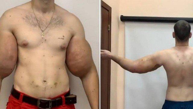 xblog kirill.jpg.pagespeed.ic .zQQD4Mg7SL - 'Popeye' russo tem 1,5 quilo de 'músculo morto' removido de braço