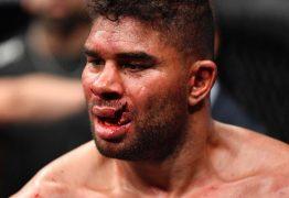 UFC: Overeem fica com a boca destruída após confronto com Jairzinho