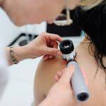 ALBUM 1067 150x150 - Paraíba estima 1.700 novos casos de câncer de pele e dermatologista explica como identificar doença