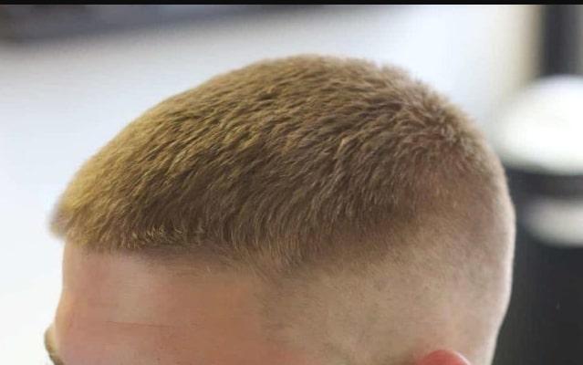VIOLÊNCIA NA PB: Homem é baleado na cabeça e motivação pode ter sido cor de cabelo, diz polícia