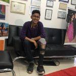 protese sor 150x150 - R$40 E CRIATIVIDADE: Jovem que fez perna com sucata de bicicleta ganha prótese