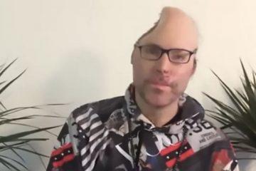 rapper 3 696x464 360x240 - Rapper mostra que perdeu parte da cabeça após explosão em laboratório de drogas - VEJA DEPOIMENTO