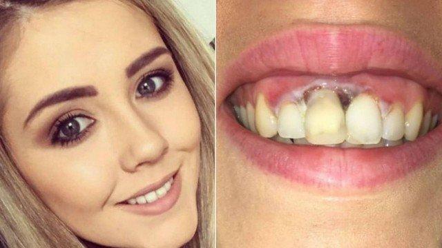 xblog teeth.jpg.pagespeed.ic .osDCmGO2p8 - Jovem fica com queimadura na gengiva após tratamento 'barato' para clarear os dentes