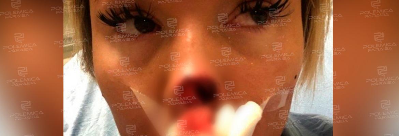 1eddec79 6185 47df ba68 daea403c9065 - Homem não aceita o fim do namoro e arranca a mordida a ponta do nariz de mulher