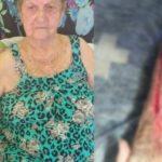 3i4c3a9ol0whb8urca0iqlam2 150x150 - Idosa tem braço cortado ao retirar gesso em hospital: 'chorava de dor'