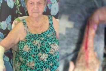 3i4c3a9ol0whb8urca0iqlam2 360x240 - Idosa tem braço cortado ao retirar gesso em hospital: 'chorava de dor'