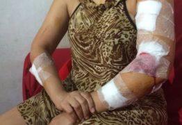 Mulher leva nove facadas durante assalto na grande João Pessoa