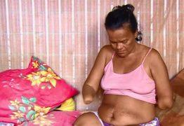 Mulher sem mãos e pernas tem benefício negado pelo INSS por não conseguir assinar