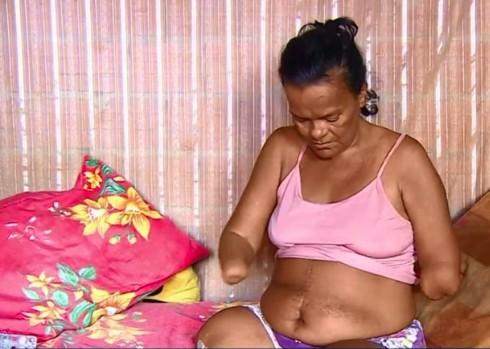 captura de tela 2020 01 22 axxs 18.51.35 - Mulher sem mãos e pernas tem benefício negado pelo INSS por não conseguir assinar