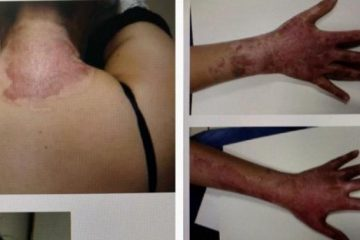 dfeqd4xgiocs1e3zbsgsemhc9 360x240 - Padrasto ateia fogo em enteada após ela interferir em agressões contra mãe