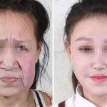xpaciente sunline hospital 1.jpg.pagespeed.ic .4fd40779rE 150x150 - Adolescente de 15 anos com envelhecimento precoce ganha novo rosto em cirurgia