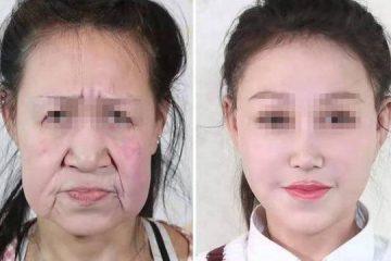 Adolescente de 15 anos com envelhecimento precoce ganha novo rosto em cirurgia