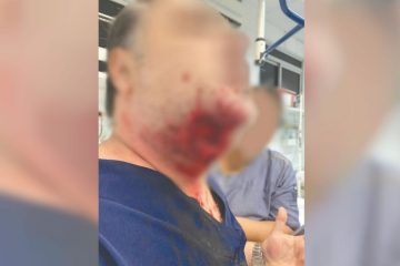 mordida 1280x720 360x240 - Paciente agride médica, outro paciente, quebra portas do pronto socorro e morde médico na jugular: 'Perdi a cabeça'