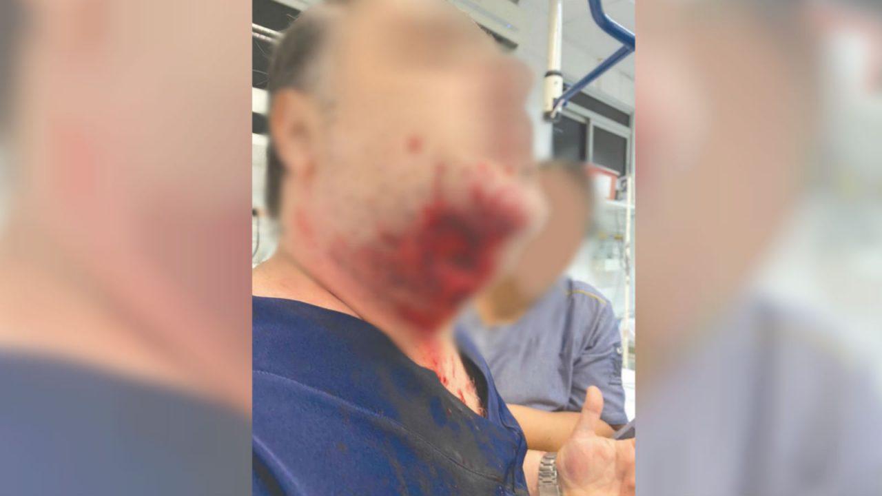 Paciente agride médica, outro paciente, quebra portas do pronto socorro e morde médico na jugular: 'Perdi a cabeça'