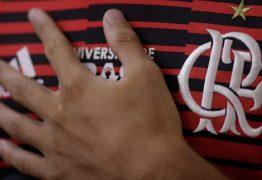 Boavista e Volta Redonda decidem quem pega o Flamengo na final