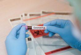 Usuário de plano de saúde tem direito a testes diagnósticos para o Coronavírus, alerta Procon-JP