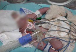 Bebê é internada após ter couro cabeludo arrancado durante parto