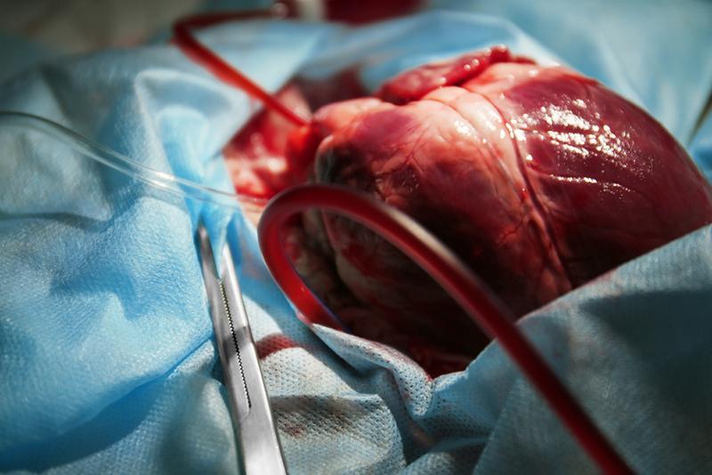 coracao1910 - Hospital de Trauma de Campina Grande realiza captação de coração, pela primeira vez