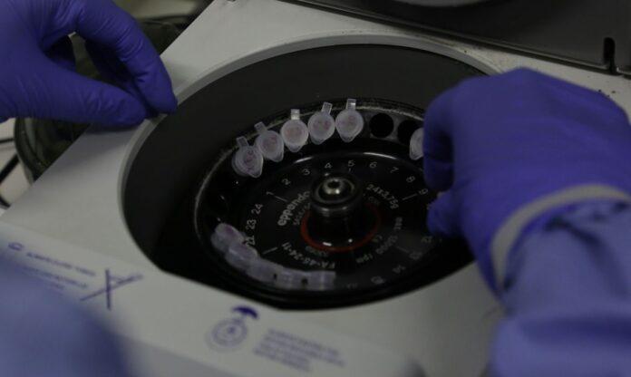 Coronavirus Foto Divulgacao Josue Damacena IOC Fiocruz 696x416 1 - PLASMA SANGUÍNEO: Estudo pode criar teste que prevê se paciente precisará ser hospitalizado