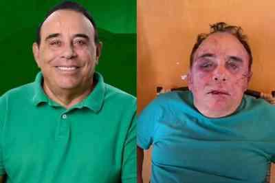 arimateia camboim - Candidato a prefeito espancado é transferido em estado grave para hospital de João Pessoa