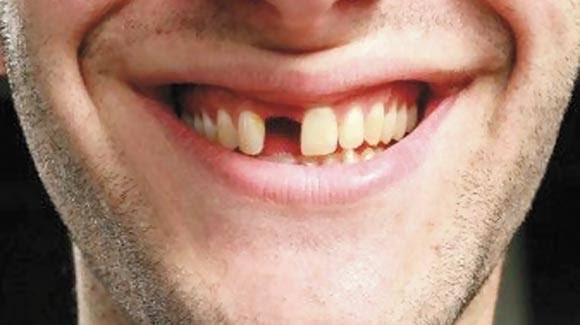 images 1 - MAIS UM SINTOMA?! Covid-19 pode causar queda repentina dos dentes