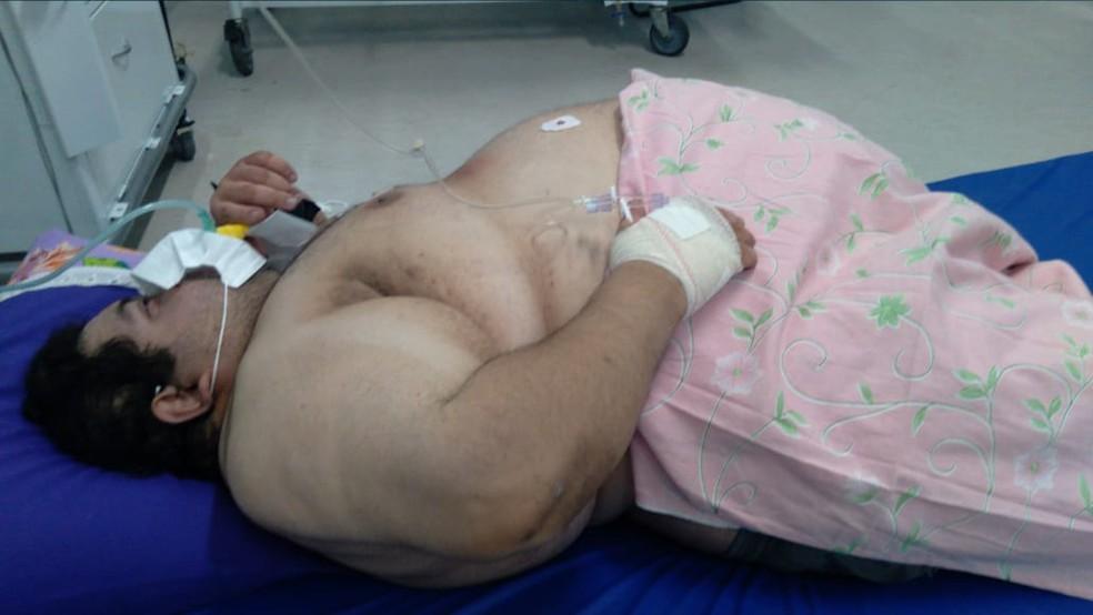 joao camara - Paciente com quase 300 quilos morre após aguardar 5 dias por vaga em UTI em colchão no chão