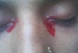 Indiana tem sangramento nos olhos e no nariz quando menstrua