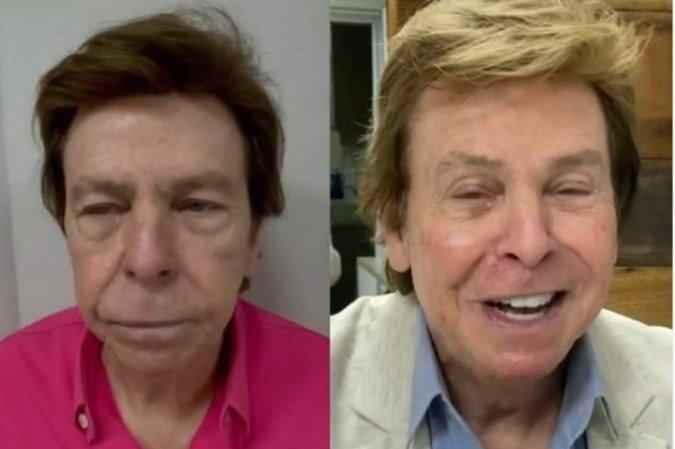 1 nelson rubens antes depois 6709363 - Nelson Rubens mostra resultado de harmonização facial: 'Eu gostei' - VEJA VÍDEO